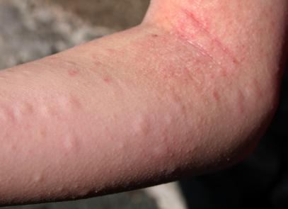 Skin Rash From Allergy To Dogs