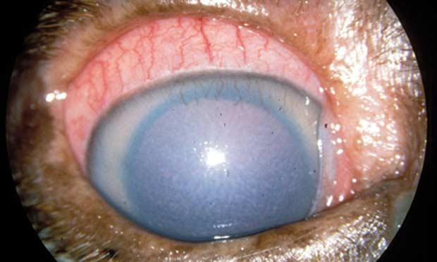 Canine Glaucoma